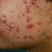 Como curar el acne cicatrices y granos rapido