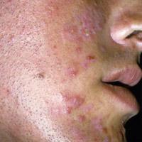 Curas naturales-para-el-acne remedios caseros